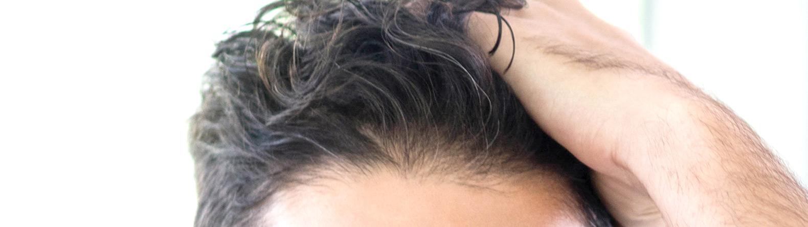 Mandraccia-Hair-Transplant-Fort-Myers-Naples